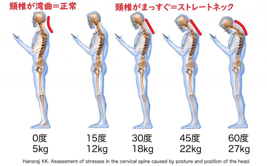 前傾姿勢による頸椎への負担